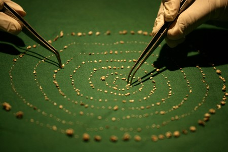 Doctors extract 526 teeth from Indian boy